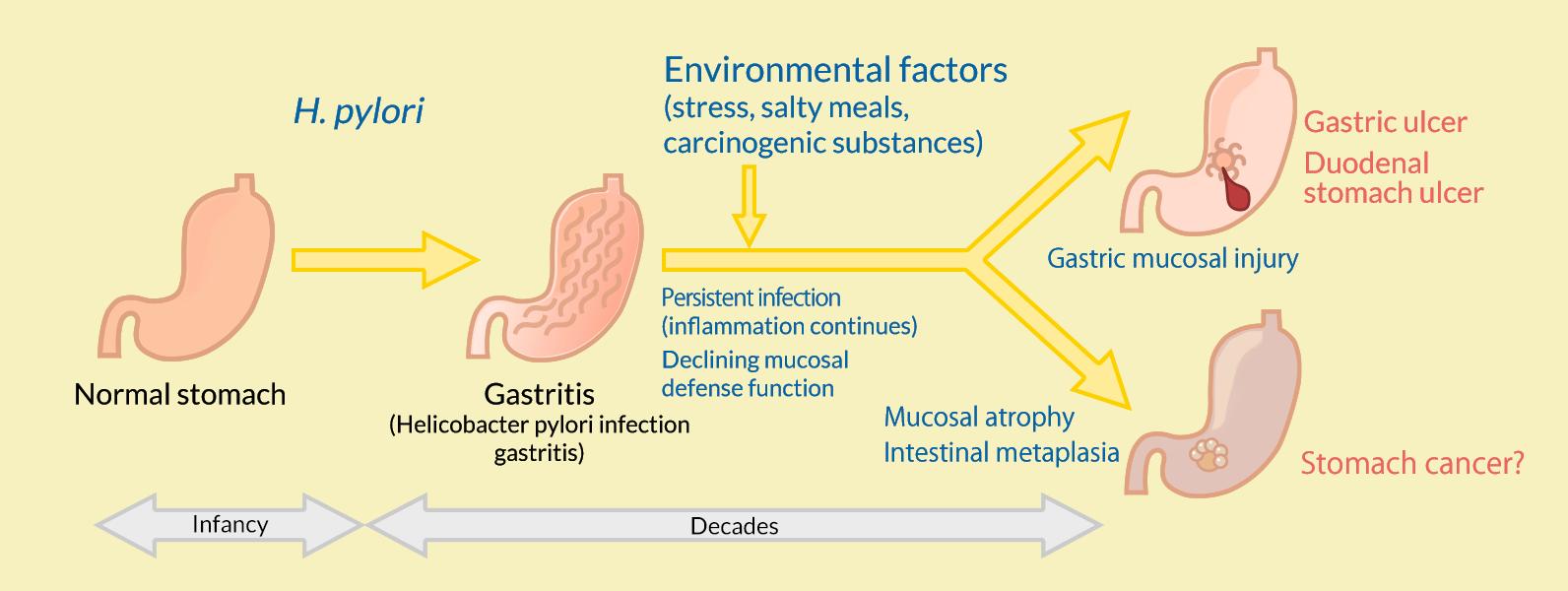Diseases Caused by H  pylori | Otsuka Pharmaceutical Co , Ltd