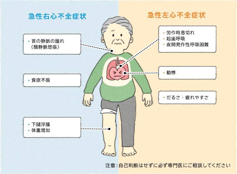 うっ血 性 心不全 症状 うっ血性心不全|症状・検査・治療・原因・再発防止について|ツカザ...
