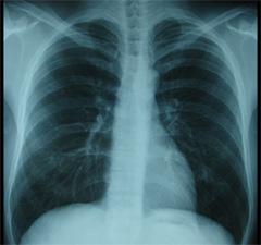 溜まる 症状 が 肺 に 水