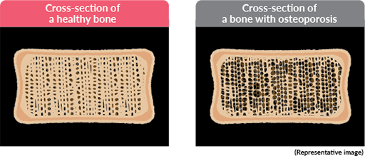 Cross-section of a healthy bone / Cross-section of a bone with osteoporosis